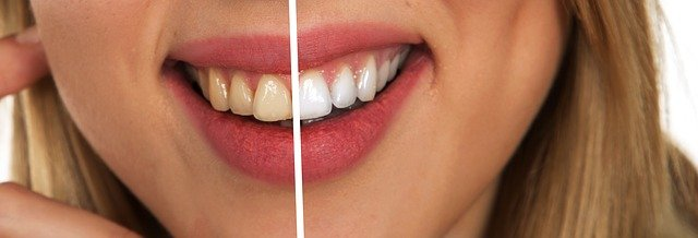 חיוך של מיליון דולר מתחת לחופה: איך להפוך שיניים פגועות לחיוך לבן ויפה